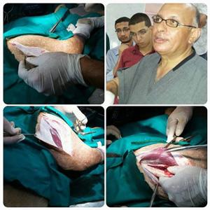 ورشة عمل لطلاب جامعة بنها لارتقاء بمهارتهم لاجراء العمليات الجراحية